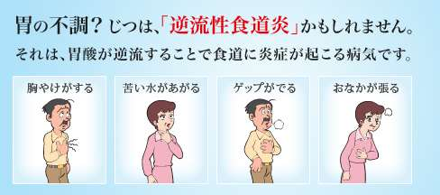 ストレス 逆流 性 食道 炎